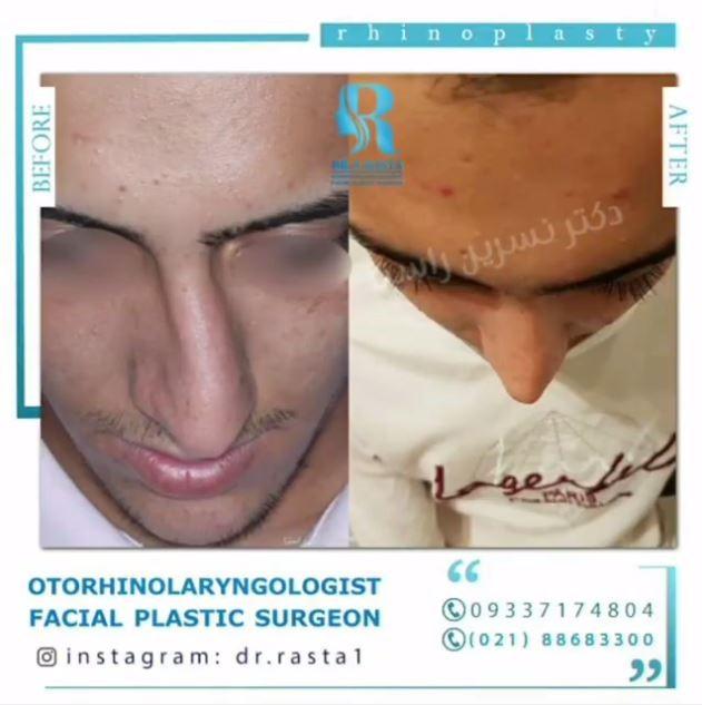 استانداردهای انتظار و توقع از جراحی زیبایی بینی