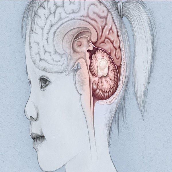 کودکان به چه نوع تومورهای مغزی دچار میشوند؟