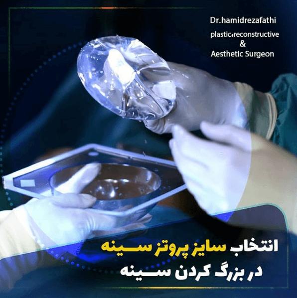 راهنمای گام به گام جراحی پروتز سینه