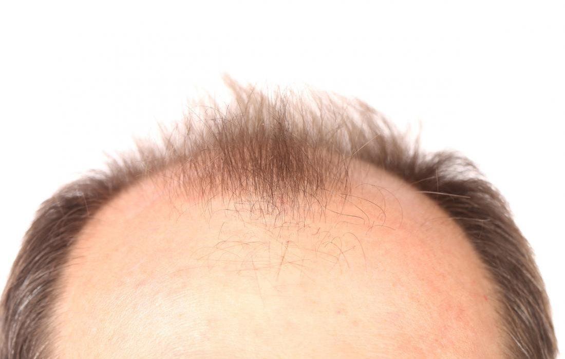 جدیدترین روش درمان طاسی سر با کاشت مو